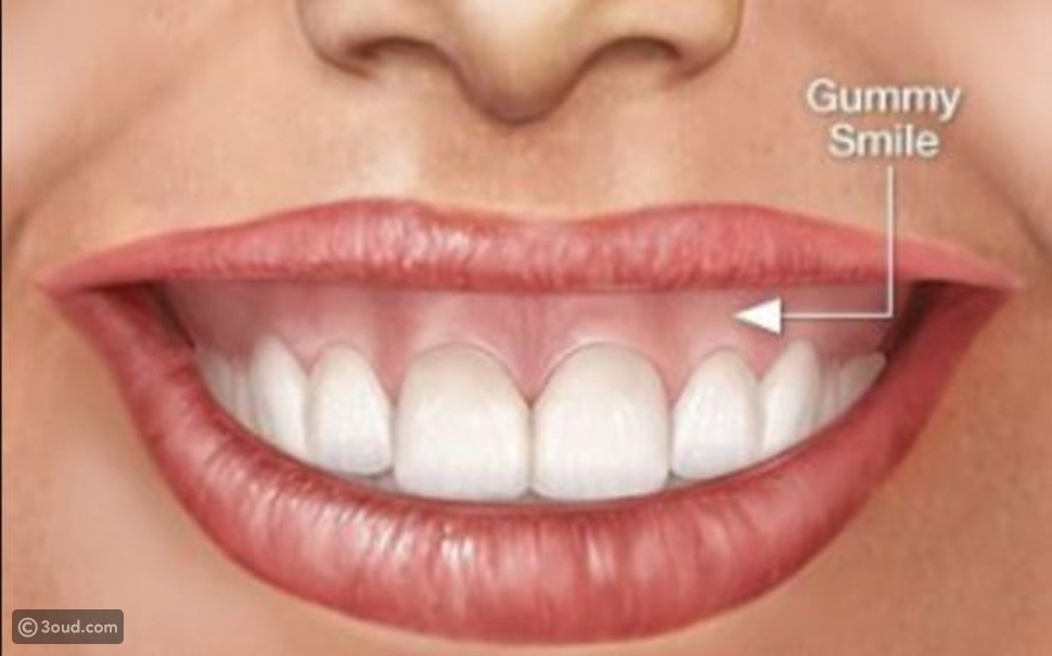 كيف تتخلصين من الـ Gummy Smile